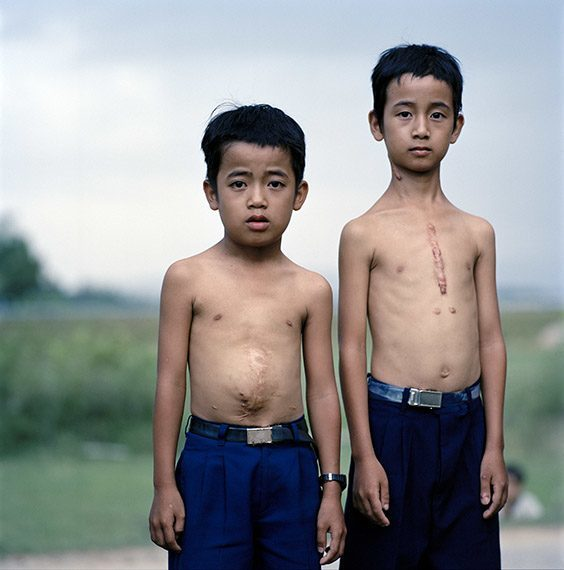 Pham Van Diep, 12, right, and his brother, Pham Van Duc, 10. The boys live near Da Nang, Vietnam, an area heavily sprayed with defoliants during the Vietnam War, and both have undergone numerous medical procedures to correct ailments doctors attribute to dioxin contamination. The places in Vietnam that were heavily sprayed with Agent Orange, an herbicide that contains dioxins, have a birth defect rate of 2.4 percent, significantly higher than the national average of 0.6 percent. Diep says his friends all think his scars are the result of a fight. He doesn't correct them.
